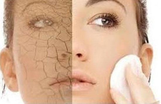 Cách trị nám da hiệu quả nhất cho da khô