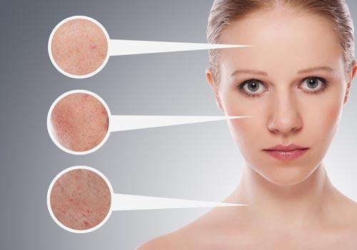 Nguyên nhân dẫn đến da bị sạm màu